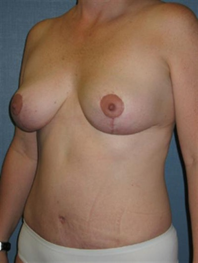 Breast Lift Gallery - Patient 1310486 - Image 6