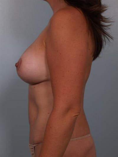 Complex Breast Revision Gallery - Patient 1310482 - Image 6