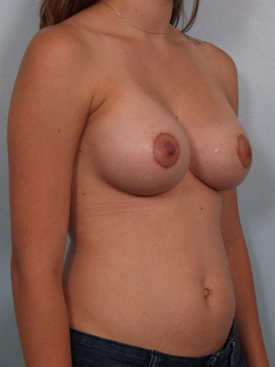 Breast Augmentation Gallery - Patient 1310485 - Image 4