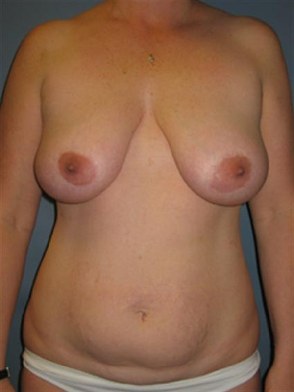 Breast Lift Gallery - Patient 1310486 - Image 1