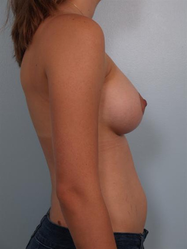 Breast Augmentation Gallery - Patient 1310485 - Image 6