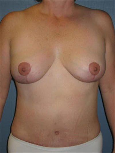 Breast Lift Gallery - Patient 1310486 - Image 2