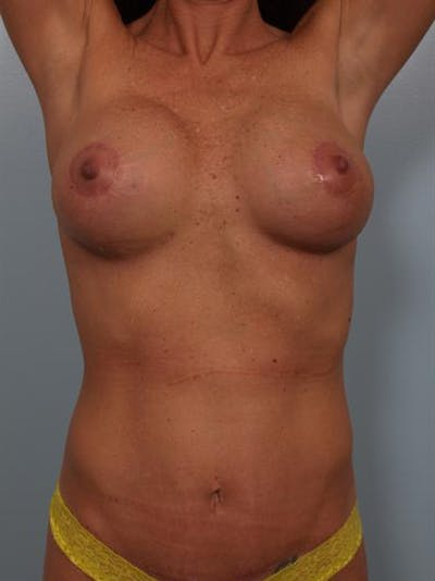 Complex Breast Revision Gallery - Patient 1310487 - Image 4