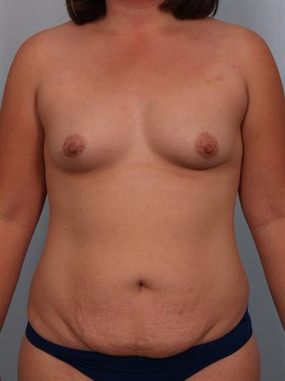 Breast Augmentation Gallery - Patient 1310490 - Image 1