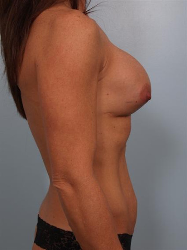 Complex Breast Revision Gallery - Patient 1310487 - Image 5