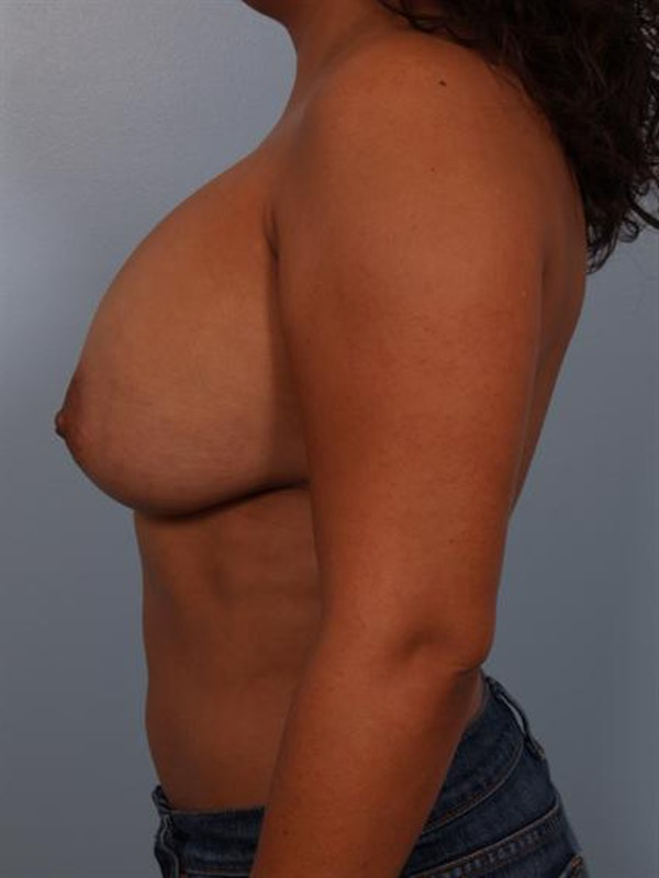 Breast Lift Gallery - Patient 1310489 - Image 3