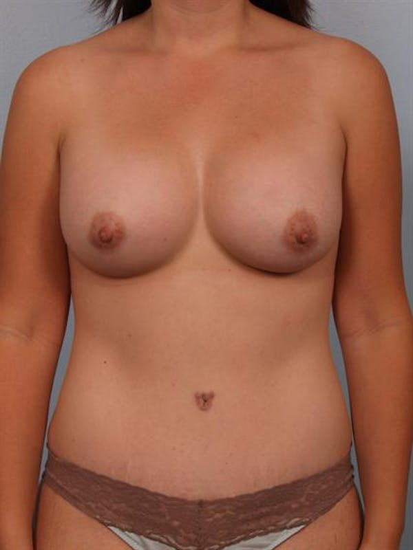 Breast Augmentation Gallery - Patient 1310490 - Image 2