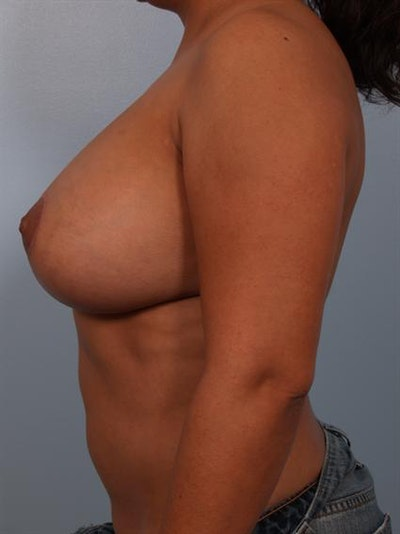 Breast Lift Gallery - Patient 1310489 - Image 4