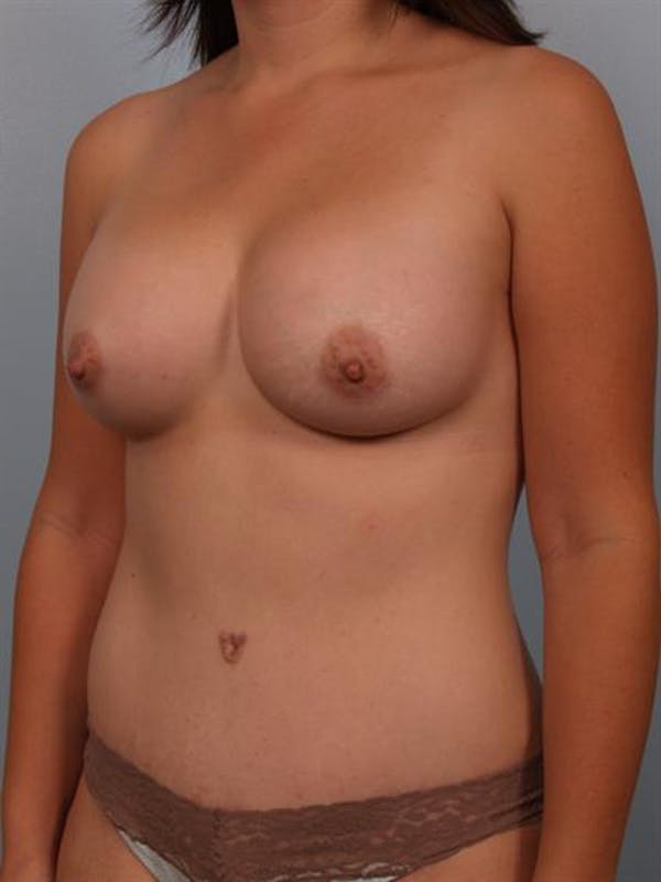 Breast Augmentation Gallery - Patient 1310490 - Image 4