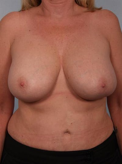Complex Breast Revision Gallery - Patient 1310491 - Image 1