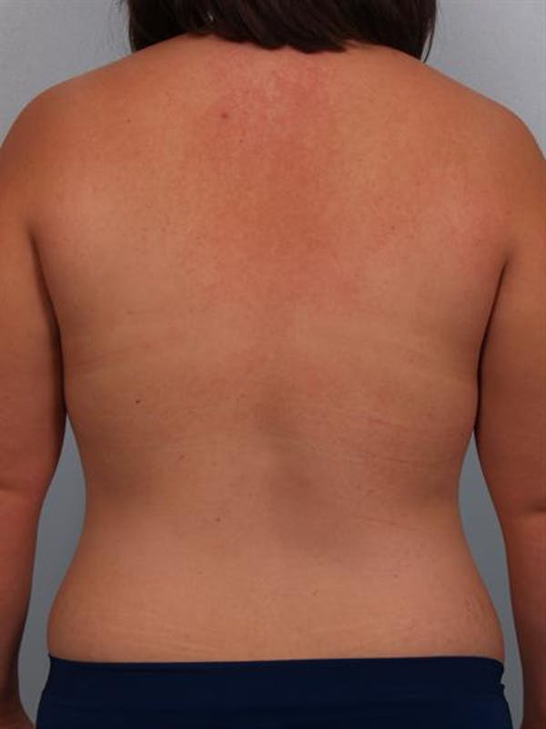 Breast Augmentation Gallery - Patient 1310490 - Image 7