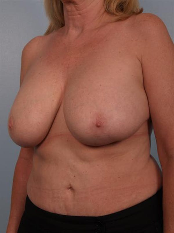 Complex Breast Revision Gallery - Patient 1310491 - Image 3