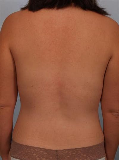 Breast Augmentation Gallery - Patient 1310490 - Image 8