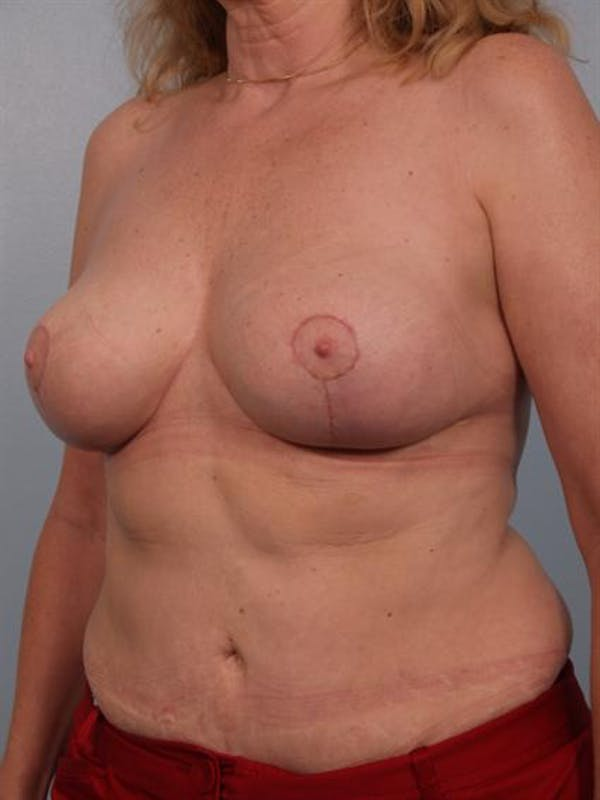 Complex Breast Revision Gallery - Patient 1310491 - Image 4