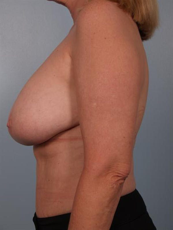 Complex Breast Revision Gallery - Patient 1310491 - Image 5