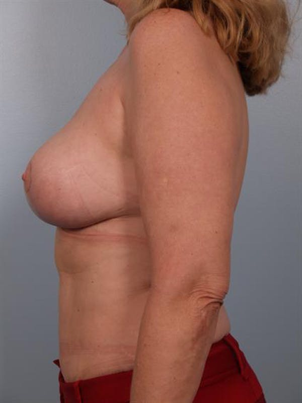 Complex Breast Revision Gallery - Patient 1310491 - Image 6