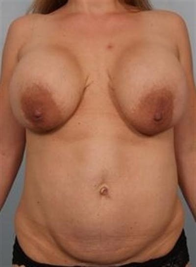 Complex Breast Revision Gallery - Patient 1310494 - Image 1
