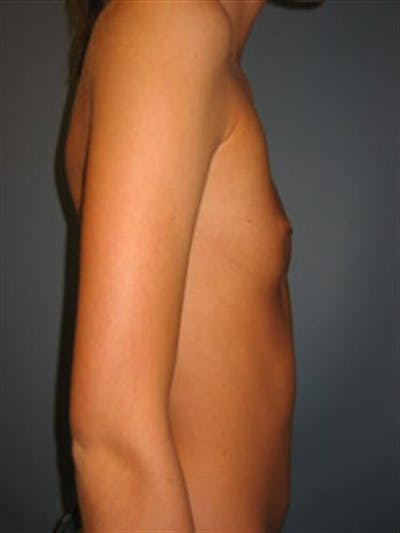 Breast Augmentation Gallery - Patient 1310495 - Image 1