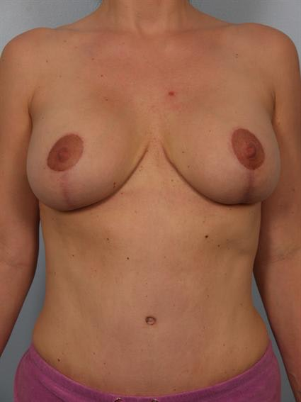 Complex Breast Revision Gallery - Patient 1310494 - Image 2