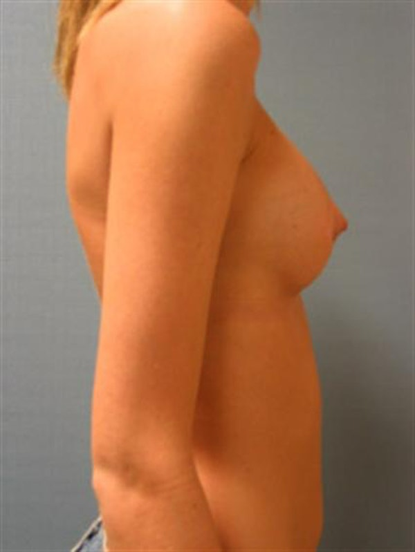 Breast Augmentation Gallery - Patient 1310495 - Image 2
