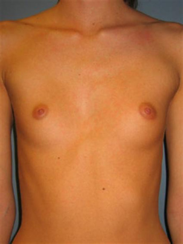 Breast Augmentation Gallery - Patient 1310495 - Image 3