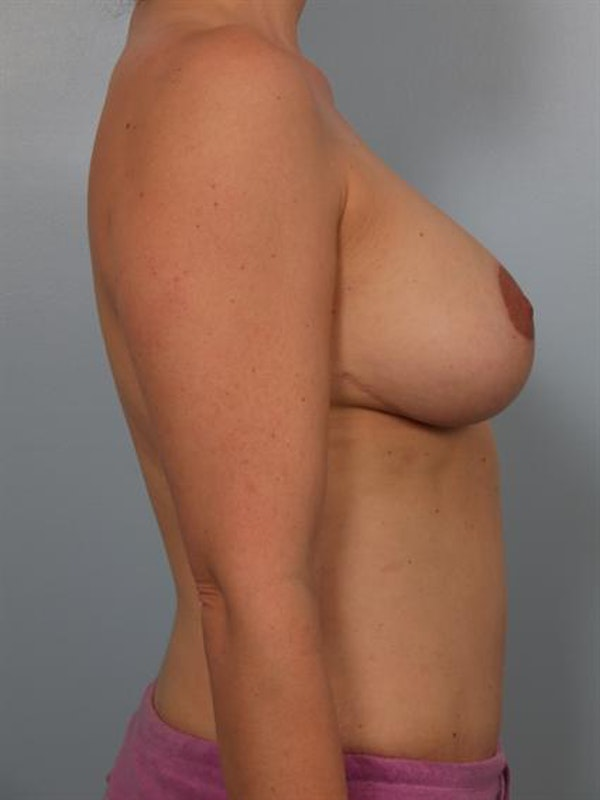 Complex Breast Revision Gallery - Patient 1310494 - Image 4