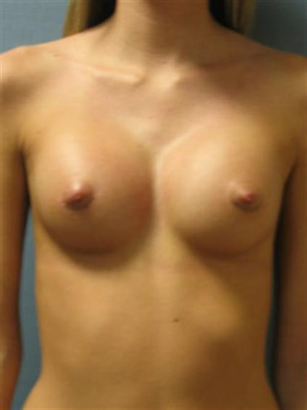Breast Augmentation Gallery - Patient 1310495 - Image 4