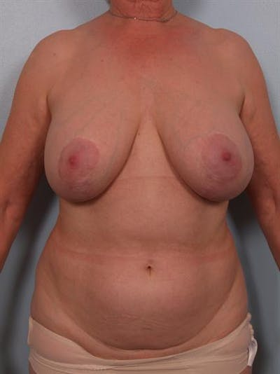 Breast Lift Gallery - Patient 1310497 - Image 1