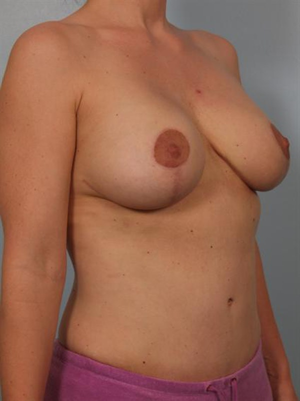 Complex Breast Revision Gallery - Patient 1310494 - Image 6