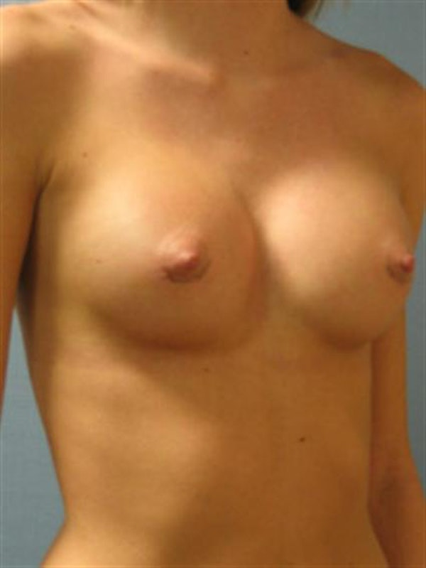 Breast Augmentation Gallery - Patient 1310495 - Image 6