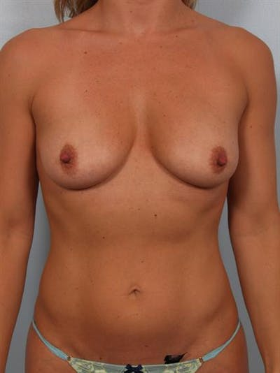 Breast Augmentation Gallery - Patient 1310499 - Image 1