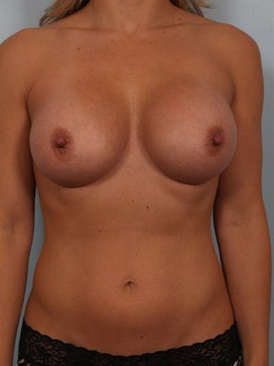 Breast Augmentation Gallery - Patient 1310499 - Image 2