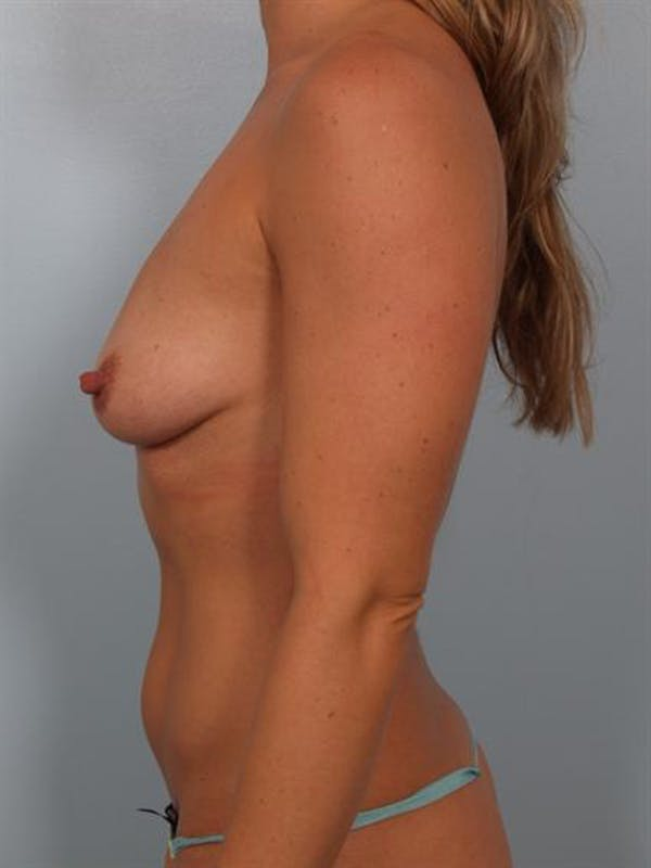 Breast Augmentation Gallery - Patient 1310499 - Image 3