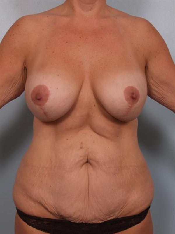 Breast Lift Gallery - Patient 1310500 - Image 1
