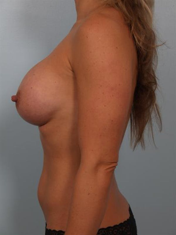 Breast Augmentation Gallery - Patient 1310499 - Image 4