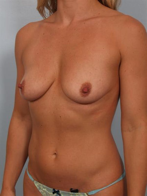 Breast Augmentation Gallery - Patient 1310499 - Image 5