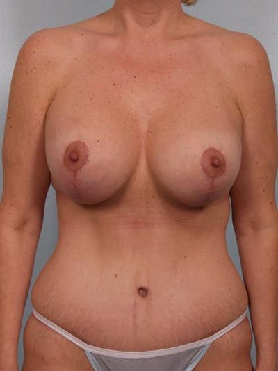 Breast Lift Gallery - Patient 1310500 - Image 2