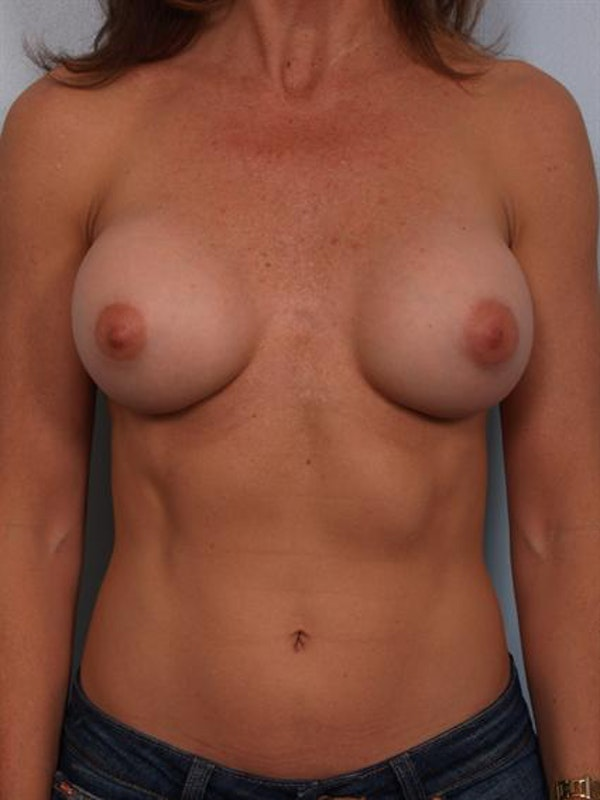 Complex Breast Revision Gallery - Patient 1310501 - Image 1