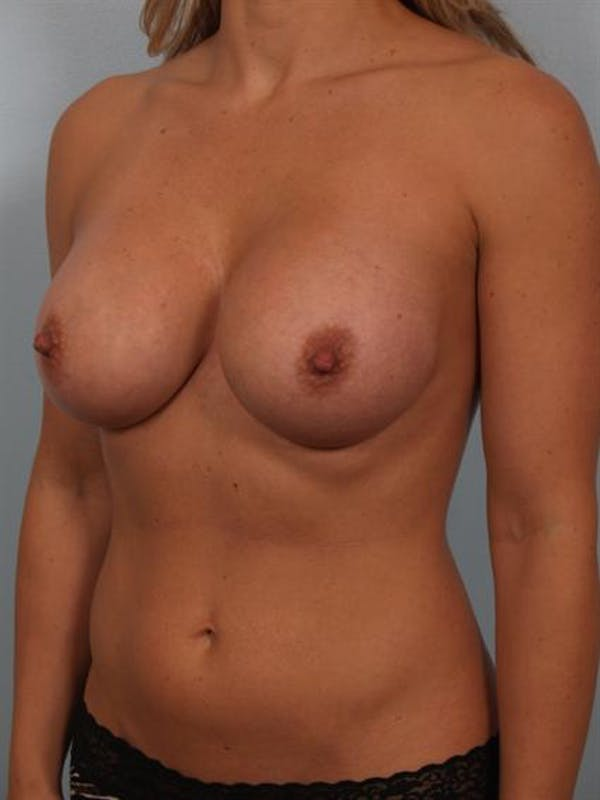 Breast Augmentation Gallery - Patient 1310499 - Image 6