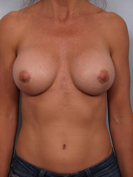 Complex Breast Revision Gallery - Patient 1310501 - Image 2