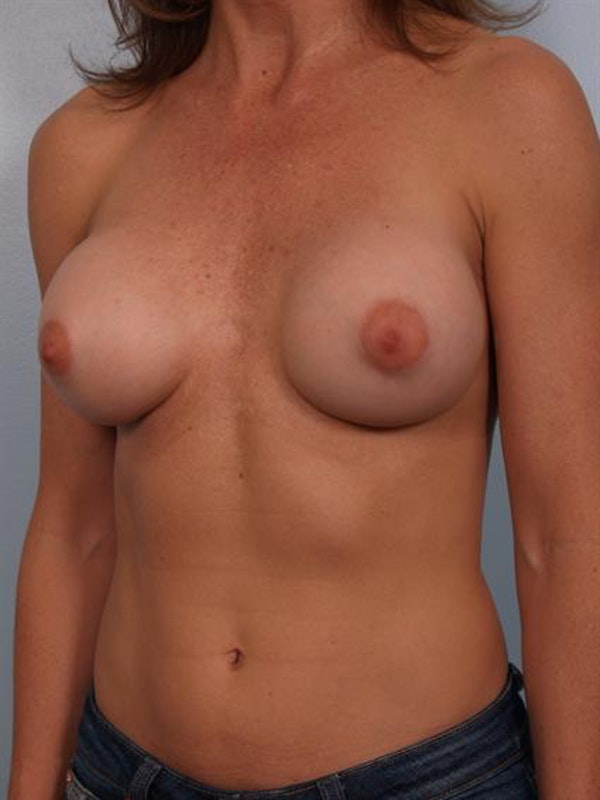 Complex Breast Revision Gallery - Patient 1310501 - Image 3