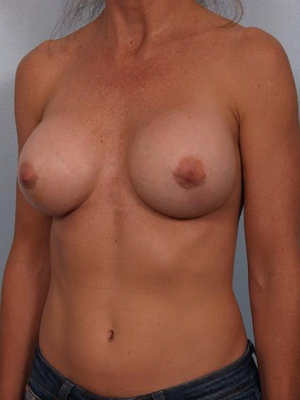 Complex Breast Revision Gallery - Patient 1310501 - Image 4