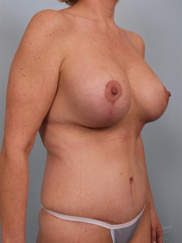 Breast Lift Gallery - Patient 1310500 - Image 6