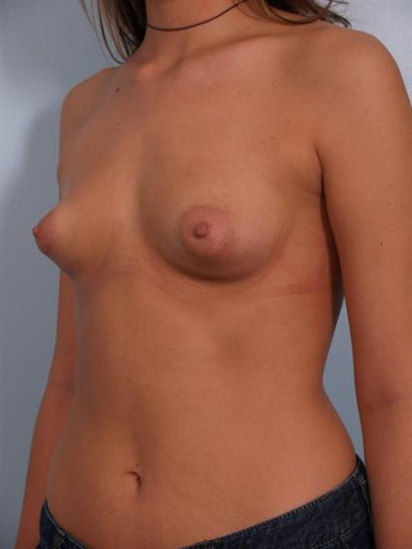 Breast Augmentation Gallery - Patient 1310502 - Image 1