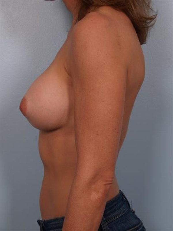 Complex Breast Revision Gallery - Patient 1310501 - Image 5