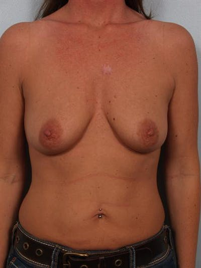 Breast Lift Gallery - Patient 1310503 - Image 1