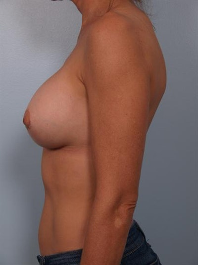 Complex Breast Revision Gallery - Patient 1310501 - Image 6