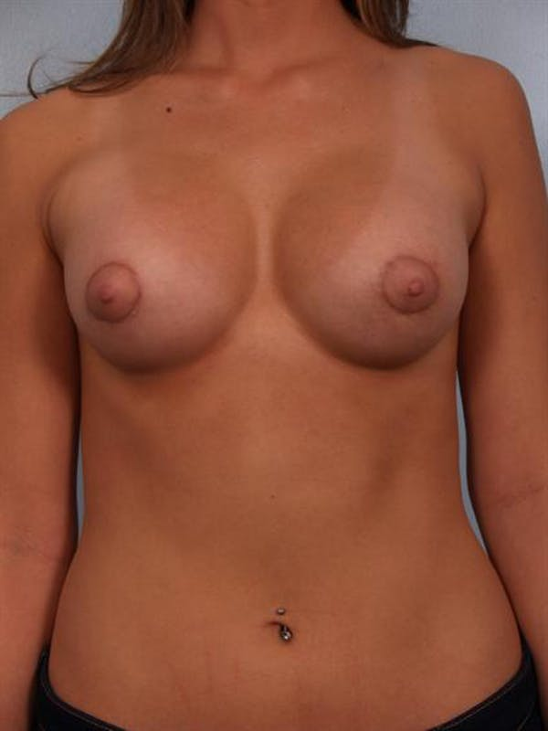 Breast Augmentation Gallery - Patient 1310502 - Image 4