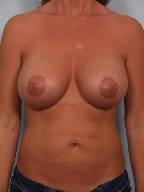 Breast Lift Gallery - Patient 1310503 - Image 2