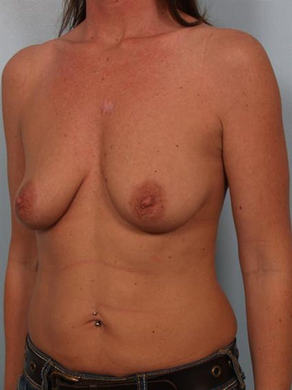 Breast Lift Gallery - Patient 1310503 - Image 3